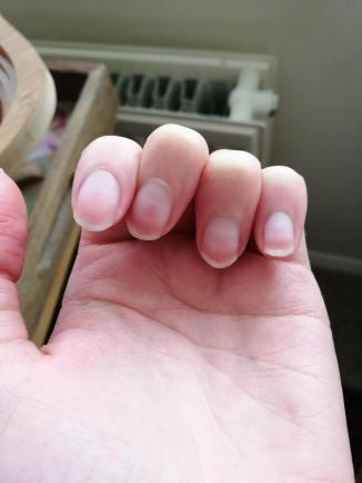 Left hand - wonky finger